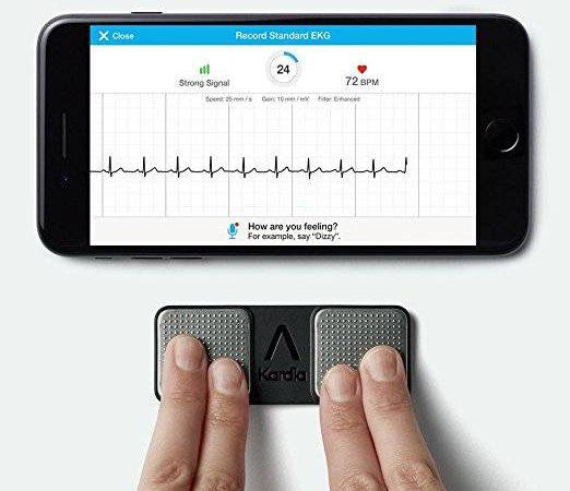 Kardia Portable EKG iOS