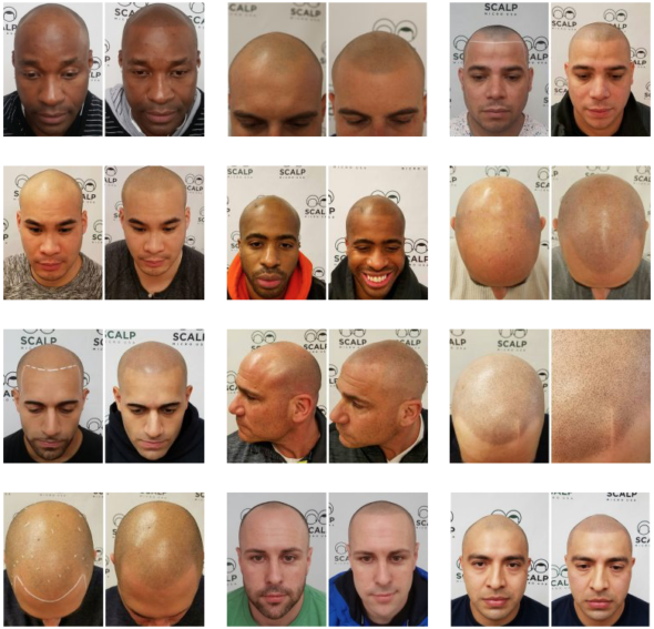 Scalp Micro USA Hairline Tattoo Before After