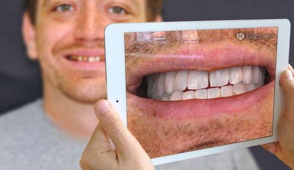 Kapanu Augmented Reality Dentist