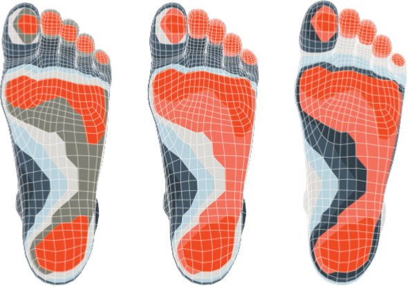 RESA 3d Printed Insoles Foot Scan